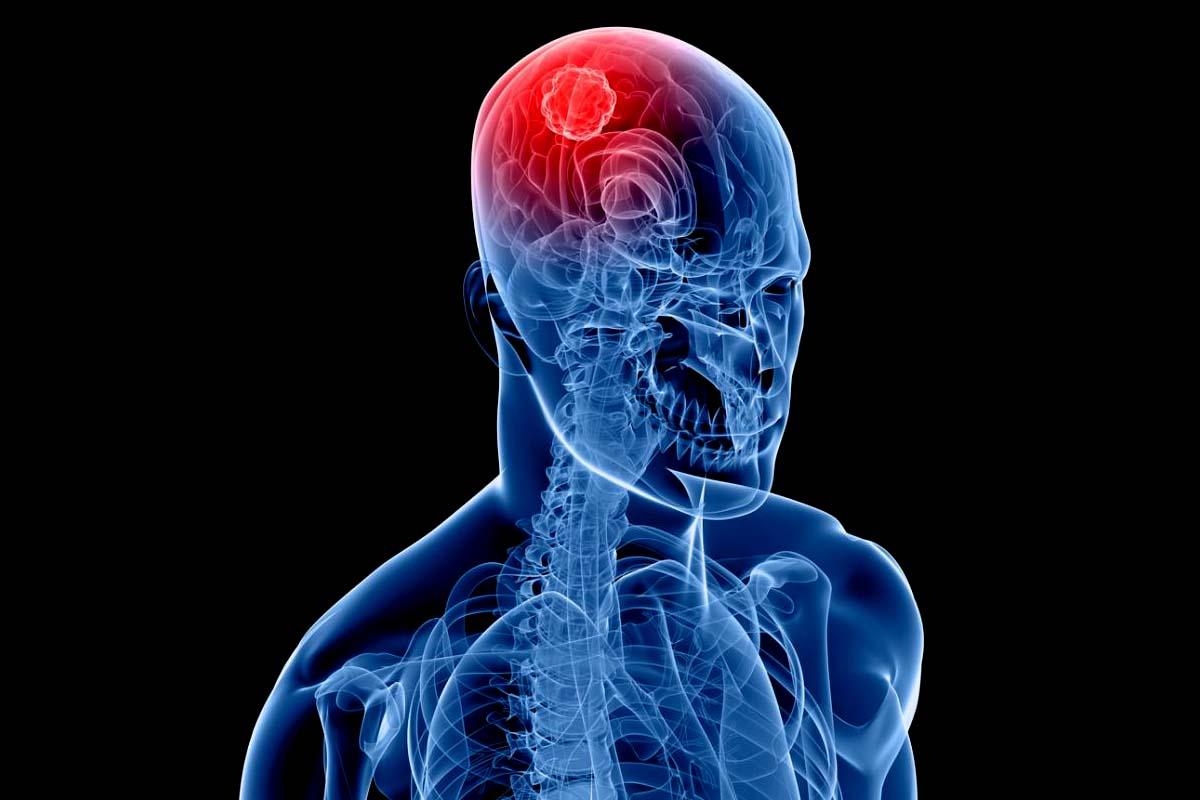 cáncer cerebro